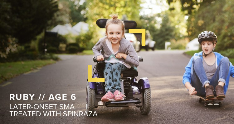a child with later-onset SMA who is being treated with SPINRAZA
